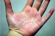 excessive sweating and eczema